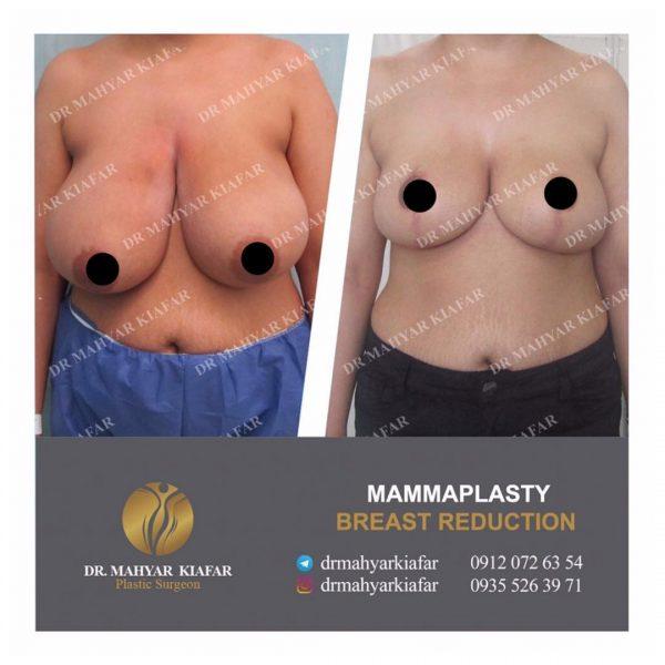 ماموپلاستی